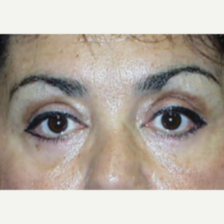 Eyelid Surgery after 1661602