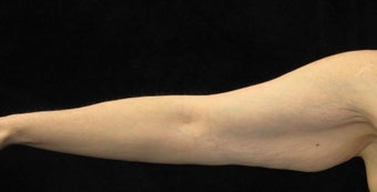 47 year old woman treated with Arm Lift 2464033