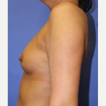 45-54 year old woman treated with Breast Augmentation before 3201128