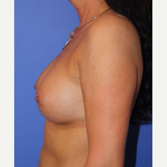 45-54 year old woman treated with Breast Augmentation after 3201128