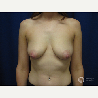25-34 year old woman treated with Breast Augmentation before 3325354