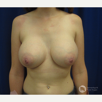 25-34 year old woman treated with Breast Augmentation after 3325354