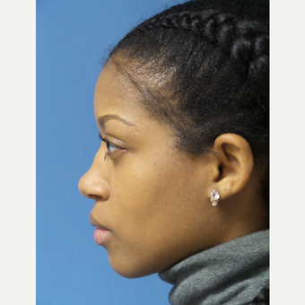 25-34 year old woman treated with African American Rhinoplasty before 3098245