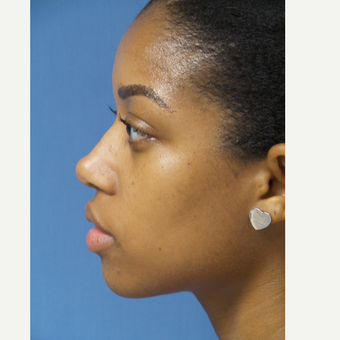 25-34 year old woman treated with African American Rhinoplasty after 3098245