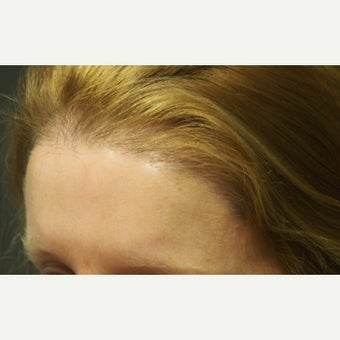 45-54  year old woman treated with Forehead Reduction  with Hair Transplant after 1973856