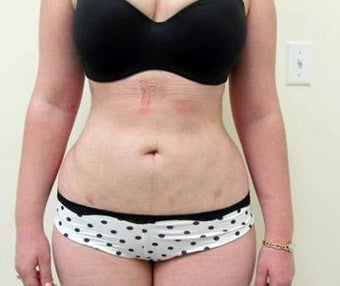 25-34 year old woman treated with Liposuction after 1898891
