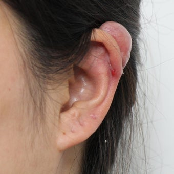 Ear Keloid Removal and Steroid Injection 3485528