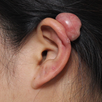 Ear Keloid Removal and Steroid Injection before 3485528