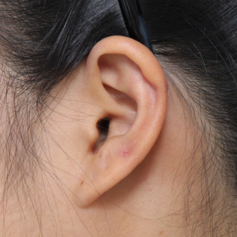 Ear Keloid Removal and Steroid Injection after 3485528