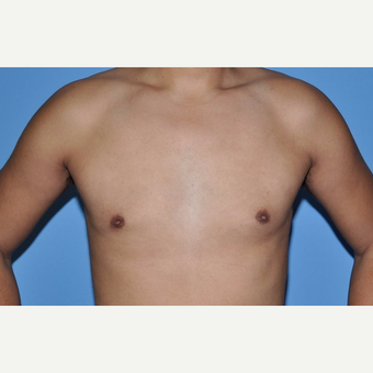 Bilateral Gynecomastia Correction after 2969840