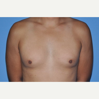 Bilateral Gynecomastia Correction before 2969840