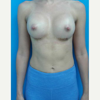 25-34 year old woman treated with Breast Augmentation after 2997945