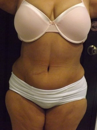 Tummy tuck with Liposculpture Flanks waist  after 1209401