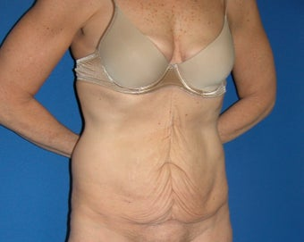 55-64 year old woman treated with Tummy Tuck before 3181942