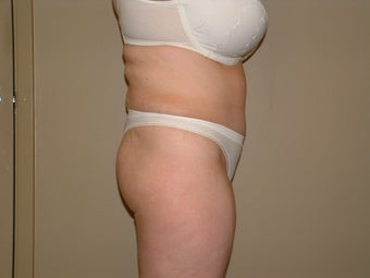 Abdominoplasty after 665494