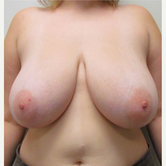 Breast Reduction for this 22 Year Old Woman before 3030465