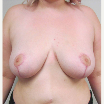 Breast Reduction for this 22 Year Old Woman after 3030465