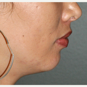 25-34 year old woman treated with Chin Implant before 3030515