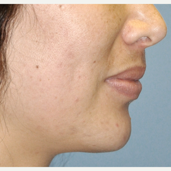 25-34 year old woman treated with Chin Implant after 3030515