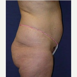 45-54 year old woman treated with Mini Tummy Tuck before 2058486