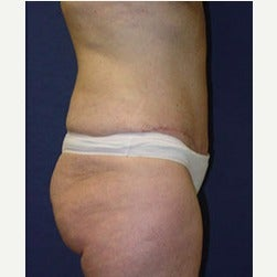 45-54 year old woman treated with Mini Tummy Tuck after 2058486