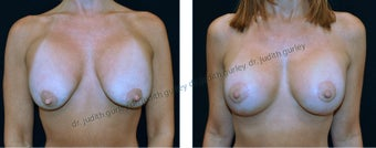 Breast Implant Revision before 1388933