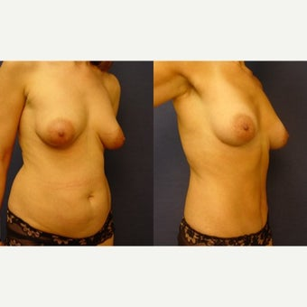 35-44 year old woman treated with Fat Transfer