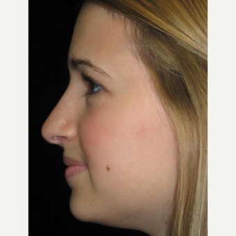 Scarless Closed Rhinoplasty after 3586263