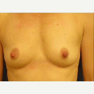 33 year old woman treated with Breast Augmentation before 1832767