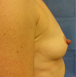 33 year old woman treated with Breast Augmentation 1832767