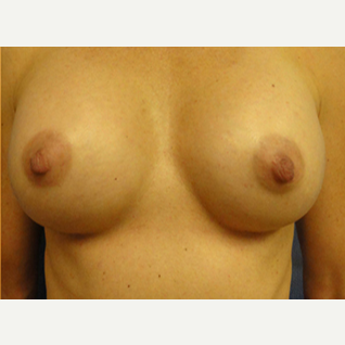 33 year old woman treated with Breast Augmentation after 1832767