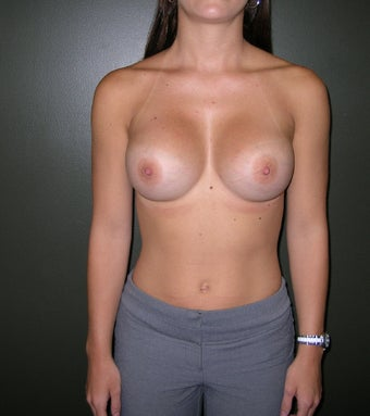 Breast Augmentation after 1205036