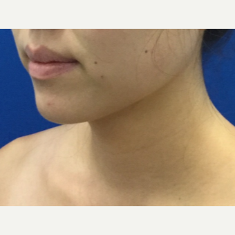 25-34 year old woman treated with Chin Liposuction after 3220090