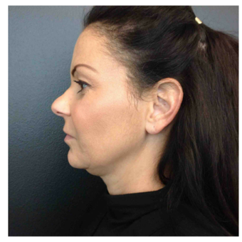 45-54 year old woman treated with Kybella before 2809649