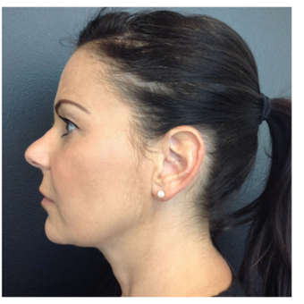 45-54 year old woman treated with Kybella after 2809649