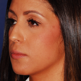 25-34 year old woman treated with Rhinoplasty before 3624297