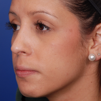 25-34 year old woman treated with Rhinoplasty after 3624297