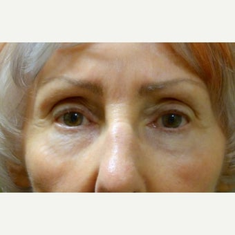 65-74 year old woman treated with Eye Bags Treatment after 2046427