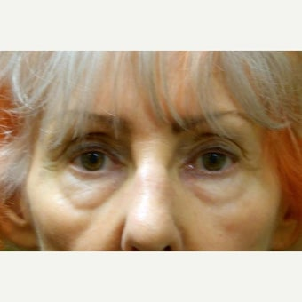 65-74 year old woman treated with Eye Bags Treatment before 2046427