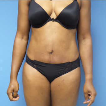 35-44 year old woman treated with Tummy Tuck after 3168461