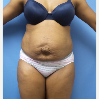 35-44 year old woman treated with Tummy Tuck before 3168461