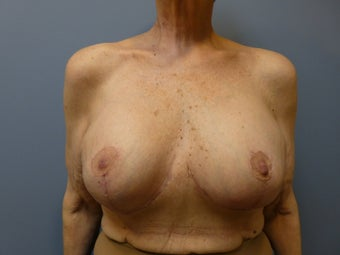 Breast Reconstruction, Implant exchange and breast lift 60 year old woman after 980700