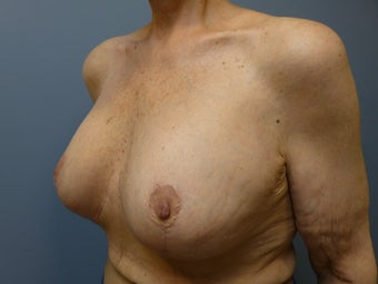 Breast Reconstruction, Implant exchange and breast lift 60 year old woman 980700