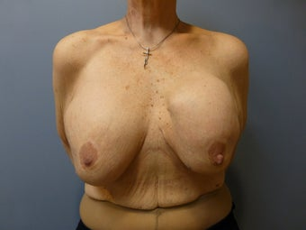 Breast Reconstruction, Implant exchange and breast lift 60 year old woman before 980700