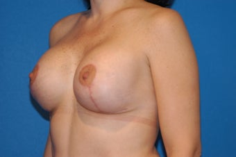 37-year old female, Breast Lift and Augmentation with Saline implants.  RT 330cc LT 330cc. after 106490
