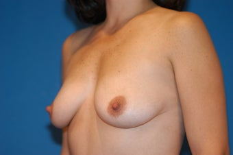 37-year old female, Breast Lift and Augmentation with Saline implants.  RT 330cc LT 330cc. before 106490