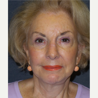 75 and up year old woman treated with Eyelid Surgery after 3466716
