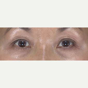 55-64 year old woman treated with Eyelid Surgery before 3482973