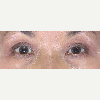55-64 year old woman treated with Eyelid Surgery after 3482973