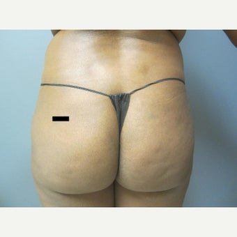 25-34 year old woman treated with Brazilian Butt Lift before 1601315